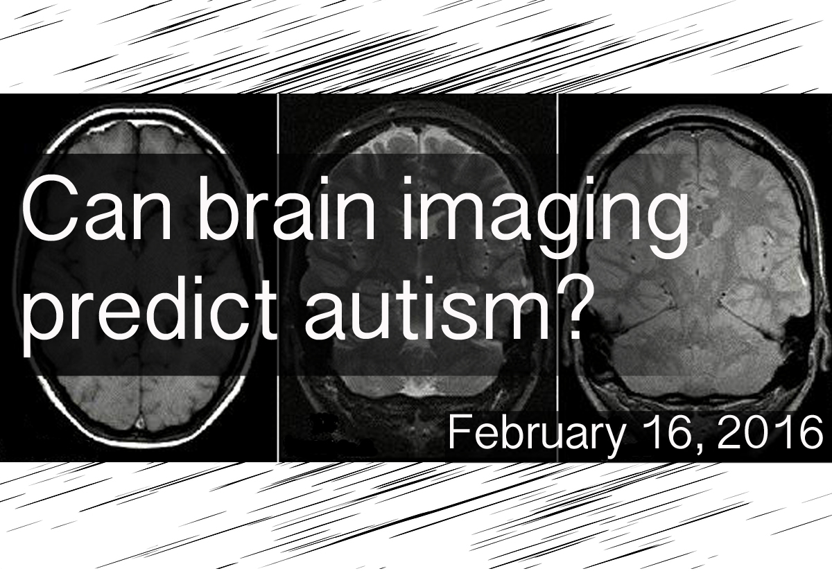 2016_02_16_brain imaging